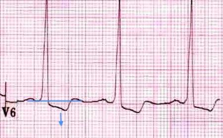 Sol ventrikül gerilme patterni : lateral derivasyonlarda ST depresyonu ve T dalga inversiyonu. Kaynak : lifeinthefastlane.com - ECG library