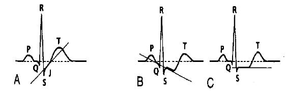 ST depresyonu: yukarı eğimli (A), aşağı eğimli (B), horizontal (C) Kaynak : lifeinthefastlane.com - ECG library
