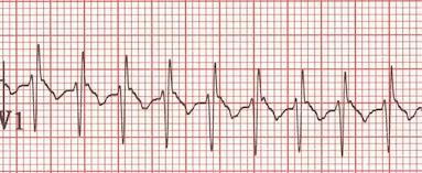 250 vuru/dak hızında SVT (V1'deki RSR' patterni çocuklarda normal bulgudur). Kaynak : lifeinthefastlane.com - ECG library