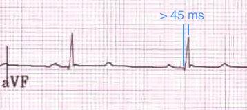 aVF'de > 45 ms uzamış R dalga tepe süresi (= QRS başlangıcından R dalga pikine kadar geçen süre). Kaynak : lifeinthefastlane.com - ECG library