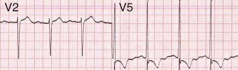 Voltaj kriterleri ile LVH: V2'de S dalgası + V5'te S dalgası > 35 mm. Kaynak : lifeinthefastlane.com - ECG library