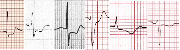 Miyokardiyal iskemide ST segment patternleri Kaynak : lifeinthefastlane.com - ECG library