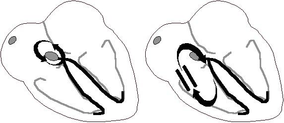 Reentran halkaların değişik tipleri: AV düğüm içerisinde  fonksiyonel halka (solda); aksesuar yolağı içeren anatomik halka = Kent demeti (sağda).