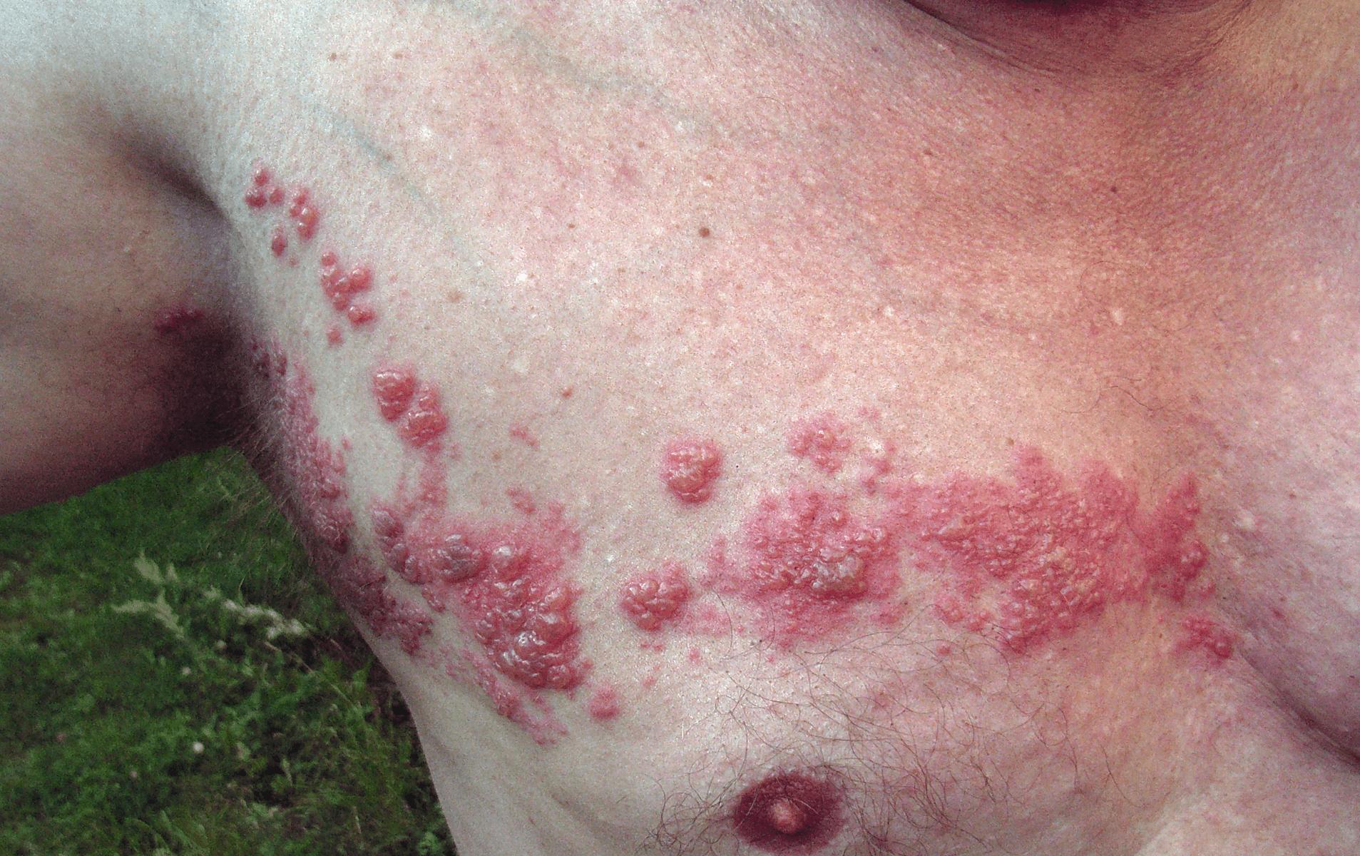 Genital herpes: semptomlar, komplikasyonlar, tedavi, teşhis