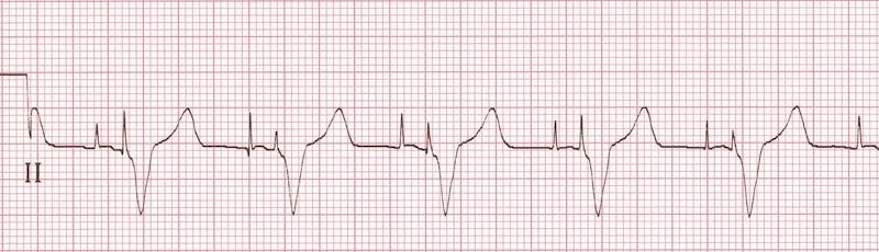 Atriyal ve ventriküler pace spikeları Kaynak : lifeinthefastlane.com - ECG library