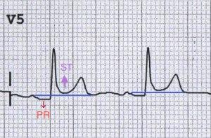 V5'te PR çökmesi ve ST elevasyonu. Kaynak : lifeinthefastlane.com - ECG library