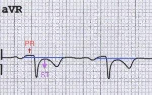 aVR'de resiprokal PR elevasyonu ve ST çökmesi. Kaynak : lifeinthefastlane.com - ECG library