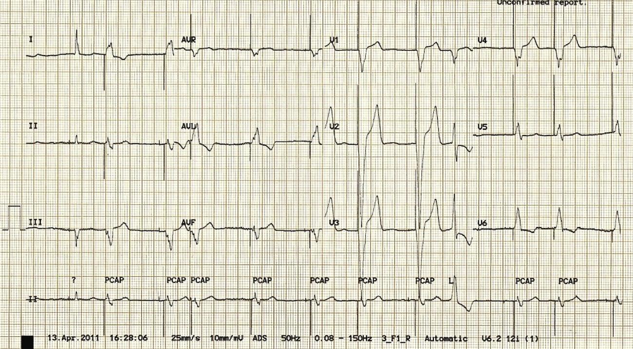 A = atriyal pace spikeı, V = ventriküler pace spikeı, E = ventriküler ektopik vuru Kaynak : lifeinthefastlane.com - ECG library