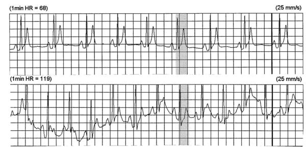 68 ve 119 vuru/dakika kalp hızlarında SQTS olan hastaya ait holter ritmi.  280 ms'lik QT aralığı her iki kalp hızında da sabit kalmaktadır (short QT syndrome.org'dan alınmıştır).