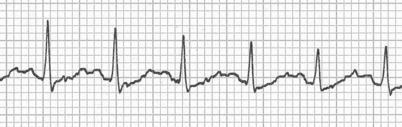 """Sinüs taşikardisinde gizlenmiş P dalgaları (""""deve horgücü"""" görünümü)."""