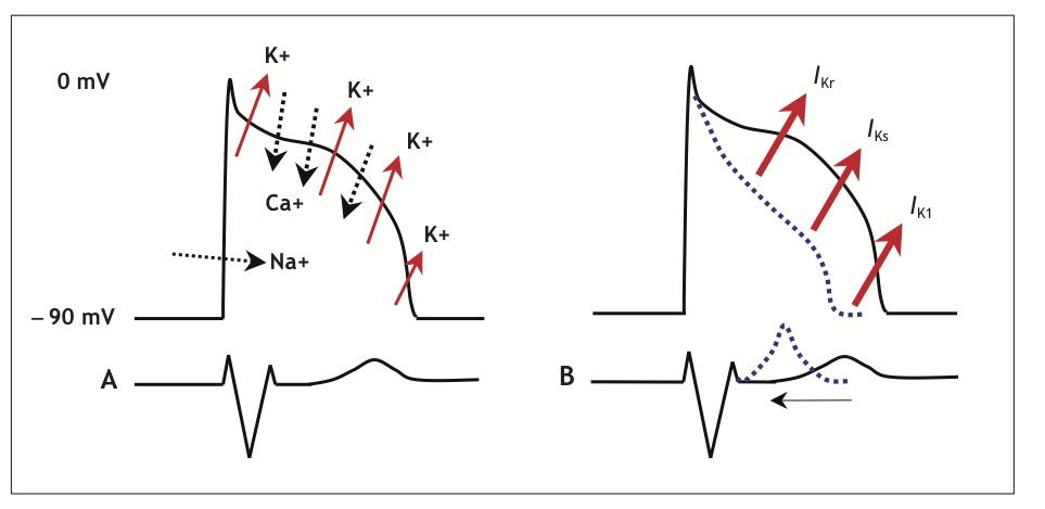 A.Normal aksiyon potansiyeli ve iyon akışının şematik görünümü B. 3 farklı potasyum kanalının her birinde fonksiyon kazanma mutasyonlarında (SQTS 1-3), kardiyak aksiyon potansiyeli kısalır ve QT aralığı azalır. (Brugada ve ark. dan alınmıştır)