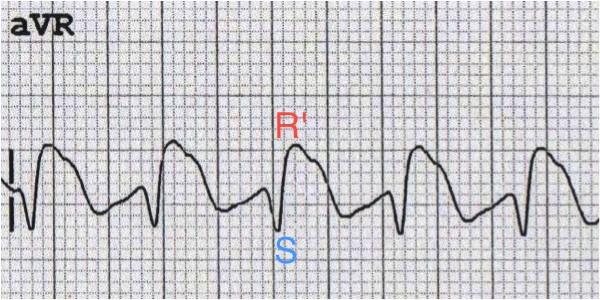 aVR'de > 3mm dominant ikinci R dalgası (R'). Kaynak : lifeinthefastlane.com - ECG library