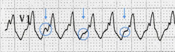 AV disosiasyon : QRS komplekslerinden farklı hızda üst üste gelen P dalgaları. Kaynak : lifeinthefastlane.com - ECG library