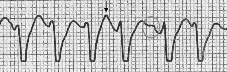 AV disosiasyon : P dalgaları QRS kompleksleri arasında gösterilebilmektedir (daire) ve T dalgası ile üstüste gelip  sivrileşmiş görünüme neden olmaktadır(ok). Kaynak : lifeinthefastlane.com - ECG library