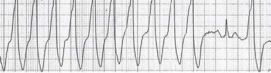Yakalama vurusu: sinüs düğümü ventrikülleri yakalayarak dar kompleks vuru oluşturmaktadır. Kaynak : lifeinthefastlane.com - ECG library