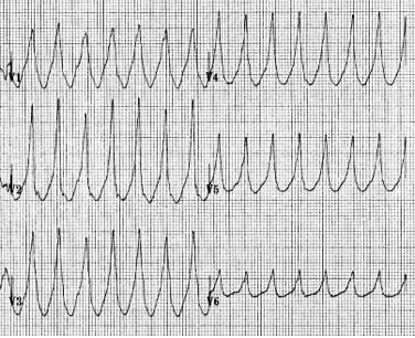 Sadece prekordiyal R dalgaları -> VT