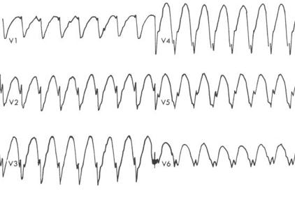 Sadece prekordiyal S dalgaları -> VT  Kaynak : lifeinthefastlane.com ECG library