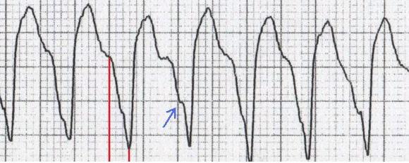 Brugada işareti (kırmızı çizgiler) ve Josephson işareti (mavi ok) Kaynak : lifeinthefastlane.com - ECG library