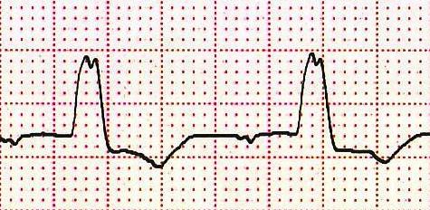Sol dal bloğu ile birlikte V6'da Q dalga yokluğu. Kaynak : lifeinthefastlane.com - ECG library