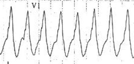 Yumuşak monofazik R dalgası -> VT KKaynak : lifeinthefastlane.com - ECG library