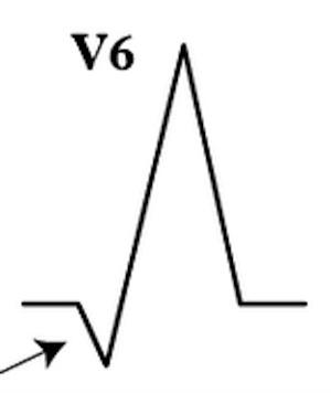 V6'da qR kompleksi -> VT