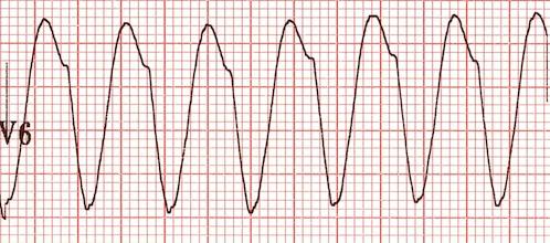 V6'da QS dalgaları -> VT Kaynak : lifeinthefastlane.com - ECG library