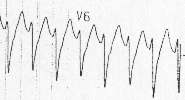V6'da R/S oranı  muhtemel VT Kaynak : lifeinthefastlane.com - ECG library
