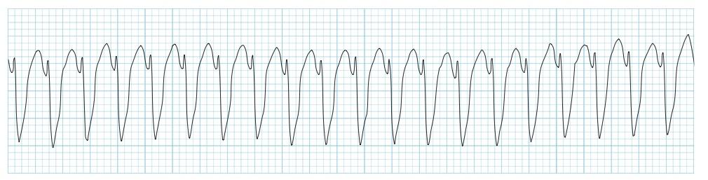 Monomorfik ventriküler taşikardi Kaynak : lifeinthefastlane.com - ECG library