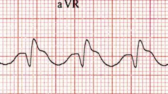 aVR'de dominant ikincil R' dalgası -> TCA zehirlenmesi Kaynak : lifeinthefastlane.com - ECG library