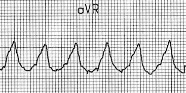 aVR'de dominant R dalga başlangıcı -> VT Kaynak : lifeinthefastlane.com - ECG library
