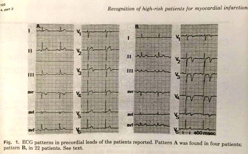 de Zwaan C, Bär FW, Wellens HJ orjinal sayfasından Wellens EKG patternleri sınıflandırması. Miyokard infarktı tehditi nedeniyle hastaneye yatırılmış hastalarda sol ön inen arterde kritik darlığa işaret eden karakteristik elektrokardiyografik pattern . Am Heart J. 1982 Apr;103(4 Pt 2):730-6.
