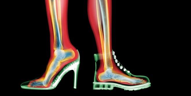Photo of ACR Uygunluk Kriterleri 1: Akut ayak travmasında görüntüleme