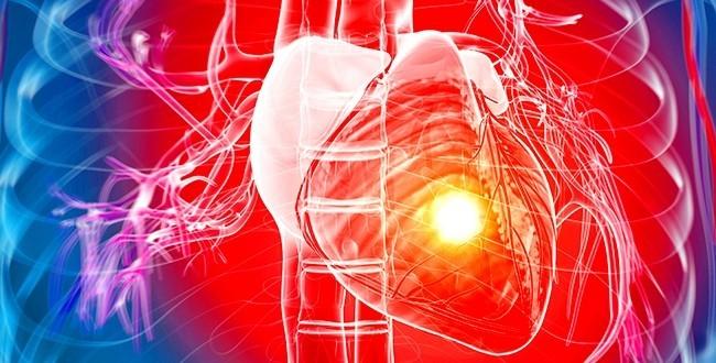 HEART-ATTACK-CENEGENICS-ARIZONA-887