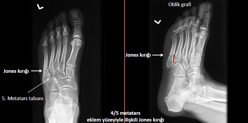 Jones frk