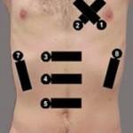 Hipotansif hasta protokolü. 1-3 kardiyak, 4-5 aorta, 6-8 Fast