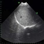 Sağ plevra ve akciğerin normal görünümü