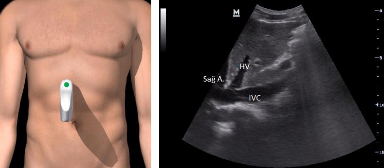 Subksifoid uzun aks: IVC inferior vena kava, HV hepatik ven, Sağ atriyum