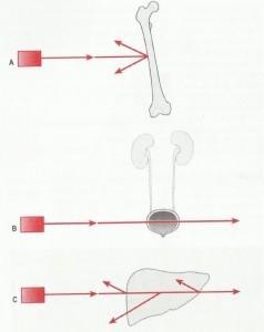 Ekranda A) kemik-beyaza yakın, B) mesane-siyaha yakın, C) karaciğer- gri renkte gözükür