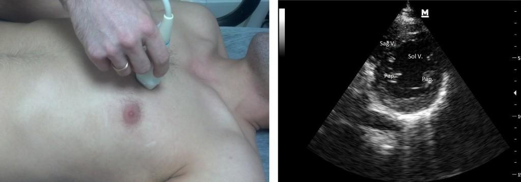 Parasternal kısa aks: Prob imleci hastanın sol omzunu gösterir V ventrikül, Papiller kaslar