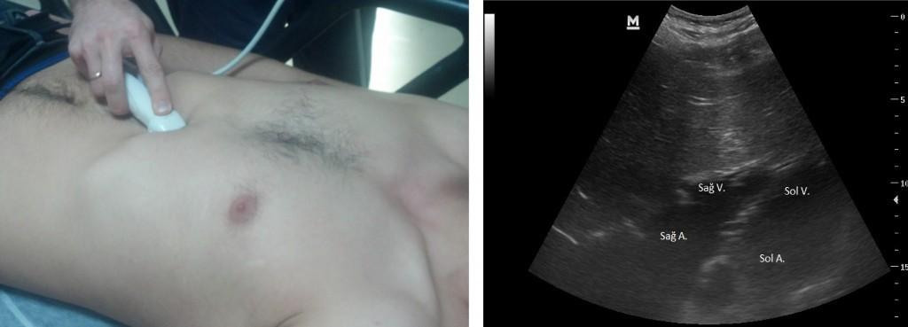 Subksifoid dört boşluk görüntüleme ve prob pozisyonu