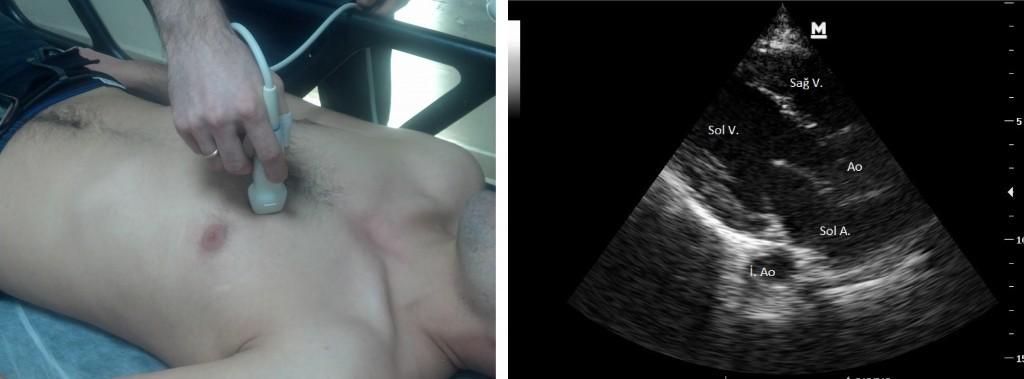Parasternal uzun aks. V ventrikül, A atriyum, Ao aorta-inen aorta Prob imleci hastanın sağ omzunu gösterir.