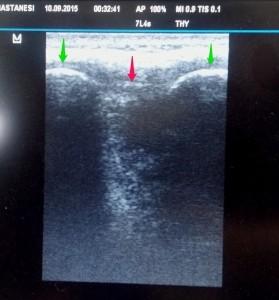 Longitudinal kesit görüntüsü. Yeşil oklar: Spinöz çıkıntılar. Pembe ok: interspinöz ligaman.