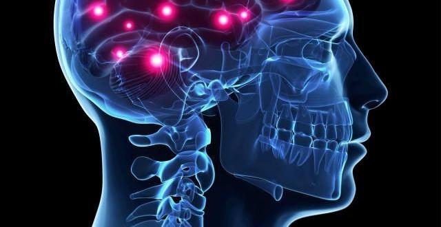 HG171_brain-types-seizures_FS