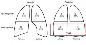 Plevral enfarkt alanları