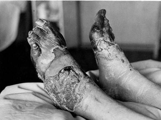 Birinci Dünya Savaşı sırasında, siper ayağı vakası