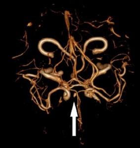 Şekil 3: BT Anjiografinin 3 boyutlu rekonstrüksiyon görüntüsünde sakküler anevrizma. (Bozok Üni. Tıp Fak. Acil Tıp Kliniği arşivinden)