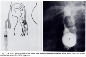 foley kateter ile özofageal yabancı cisim çıkarma