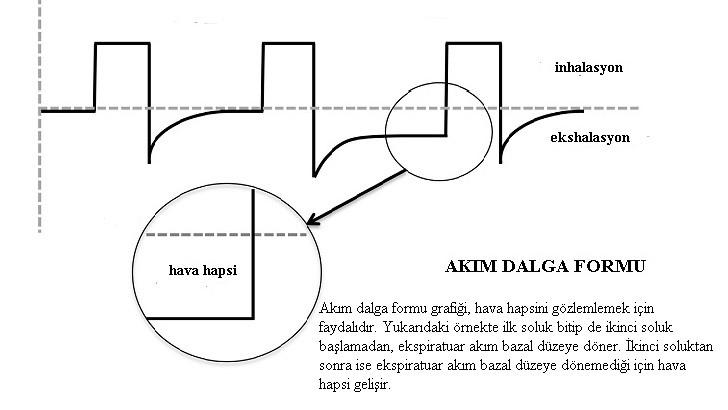 akım dalga formu
