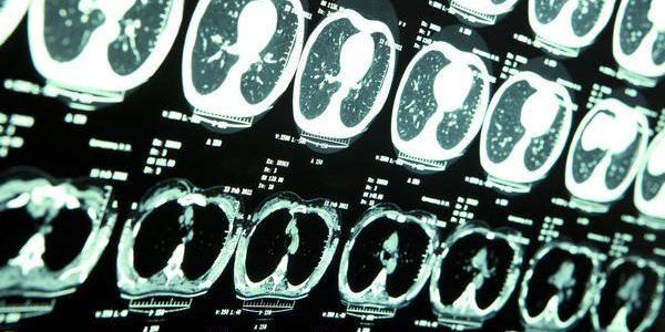 Photo of Acil serviste abdominal tomografi yorumlama kılavuzu 4: ince ve kalın barsaklar