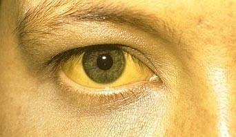 sarılık